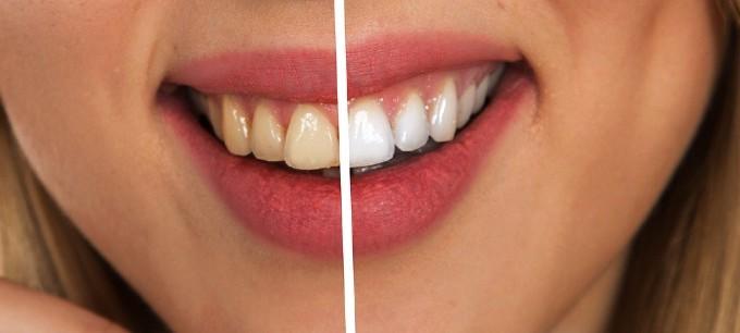 笑顔で歯を見せたときのイメージ